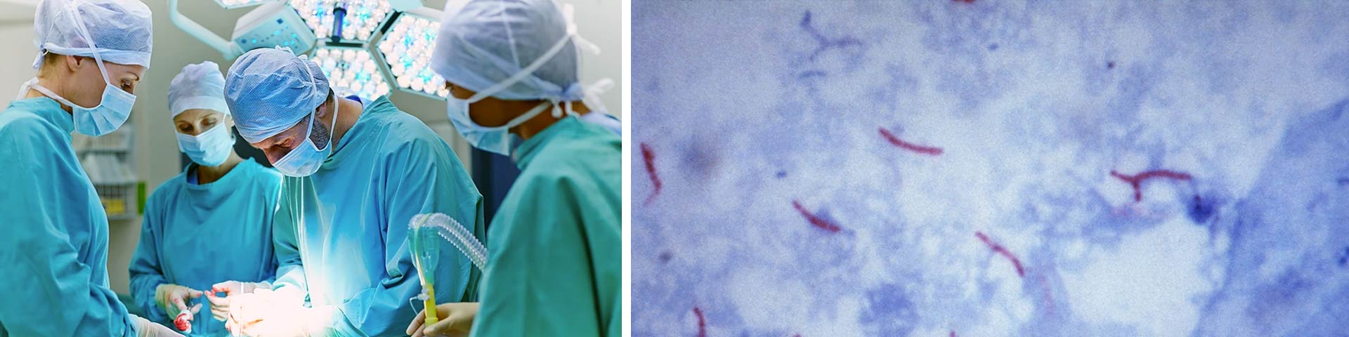 Mycobacterium chimaera and open cardiac surgery